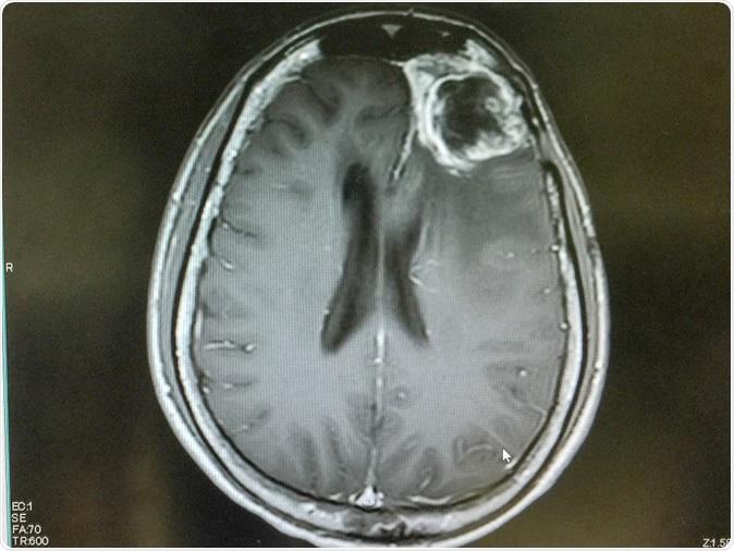 MRI of brain showing left frontal gliblastoma. Image Credit: O_Akira / Shutterstock