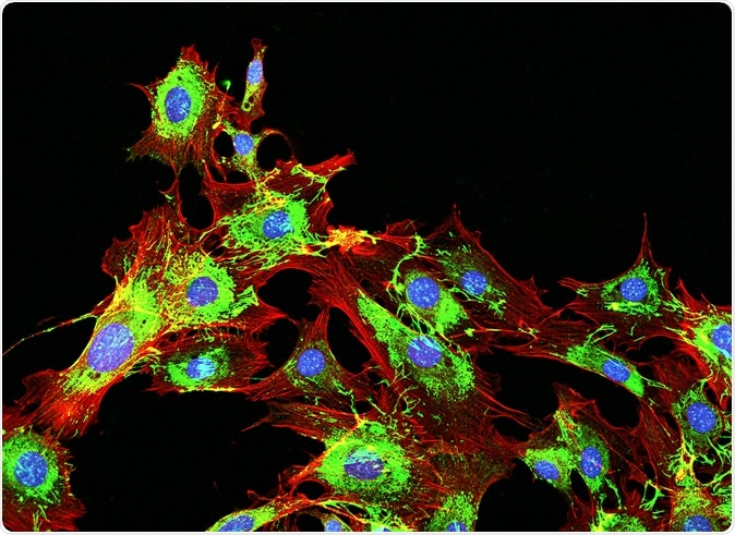 Imaging of metastatic cancer cells spreading on the surrounding tissue. Image Credit: DrimaFilm / Shutterstock