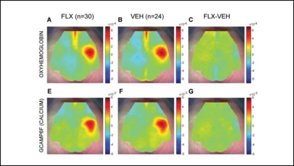 Os ratos estudam mostras o impacto de tomar antidepressivos durante a gravidez