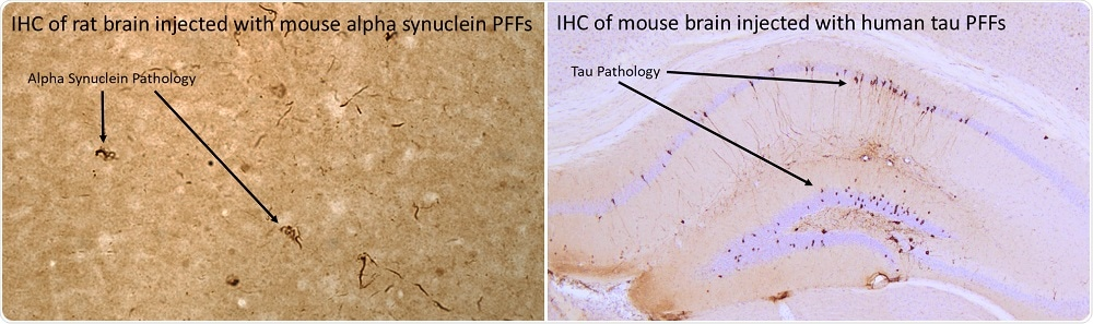 (L) Mouse alpha-synuclein PFFs induce alpha-synuclein pathology 30 days post-injection into rat brain. (R) Human P301L mutant K18 PFFs induce tau pathology nine weeks post-injection into P301L transgenic mouse brain.