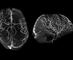 """Tic-Tac-Toe"" tackles Alzheimer's disease"
