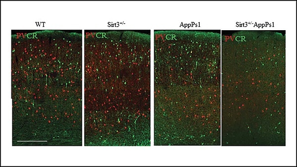 Ketone-supplemented diet may help fight against Alzheimer's disease