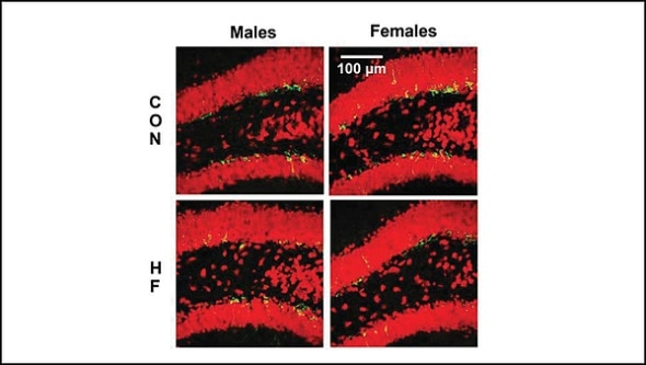High fat diet limits birth and development of new neurons in female mice