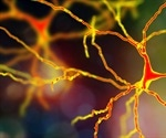 Could high cholesterol lead to motor neuron disease?