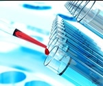 Developing software for cell and gene therapy supply chain tracking