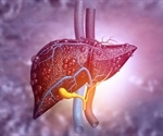 Using math equations to detect and forecast liver cancer risk