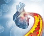 Early cholesterol checks could save your heart