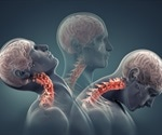 Modified stroke drug boosts injury repair in rats with spinal cord damage