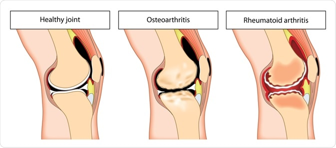 osteoarthritis rheumatoid arthritis