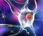 Cancer drug shows promise in battling Parkinson's disease