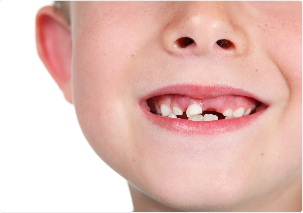 Child with missing teeth