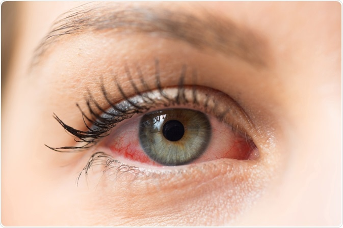woman with eye allergy - close up photo