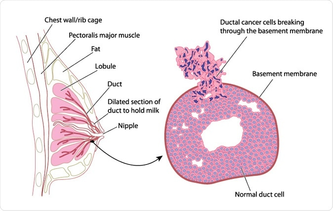 Cross section of female breast with detail of breast cancer - Image Credit: Blamb / Shutterstock