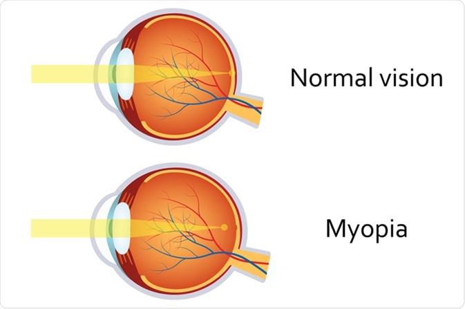 Myopia. Image Credit: Neokryuger / Shutterstock