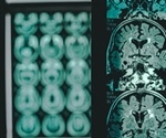 Brain can produce new cells even at the age of 90