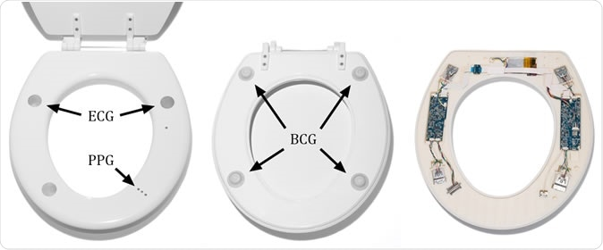 The toilet seat–based cardiovascular monitoring system is completely self-contained, battery-powered, wireless, and cleanable with all sensors and electronics instrumentation integrated inside of the seat. It can measure the electrocardiogram (ECG), photoplethysmogram (PPG), and the ballistocardiogram (BCG). Image Credit: 2019 JMIR Publications