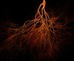 Lab-grown blood vessels provide hope for dialysis patients