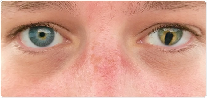 Coloboma is an eye abnormality that occurs before birth. Colobomas are missing pieces of tissue in structures that form the eye.