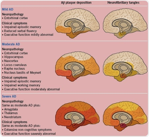 The neuropathology and clinical symptoms shown as Alzheimer