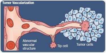 Normal angiogenesis versus tumor vascularization