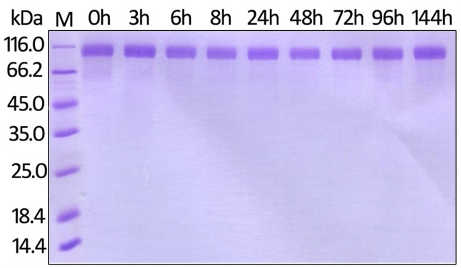 Human Her2, His Tag (Cat. No. HE2-H822R) on SDS-PAGE under reducing (R) condition. The gel was stained overnight with Coomassie Blue.