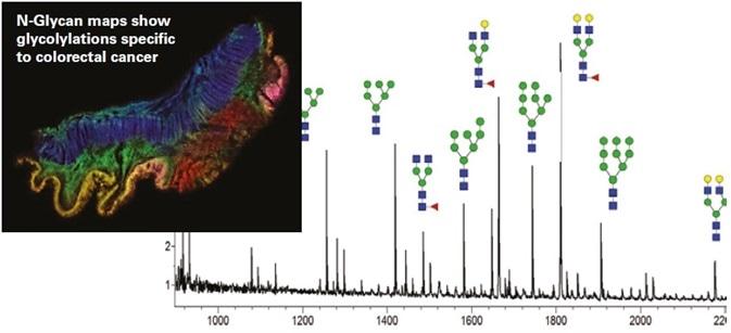 Correlate Protein Glycosylation to Disease