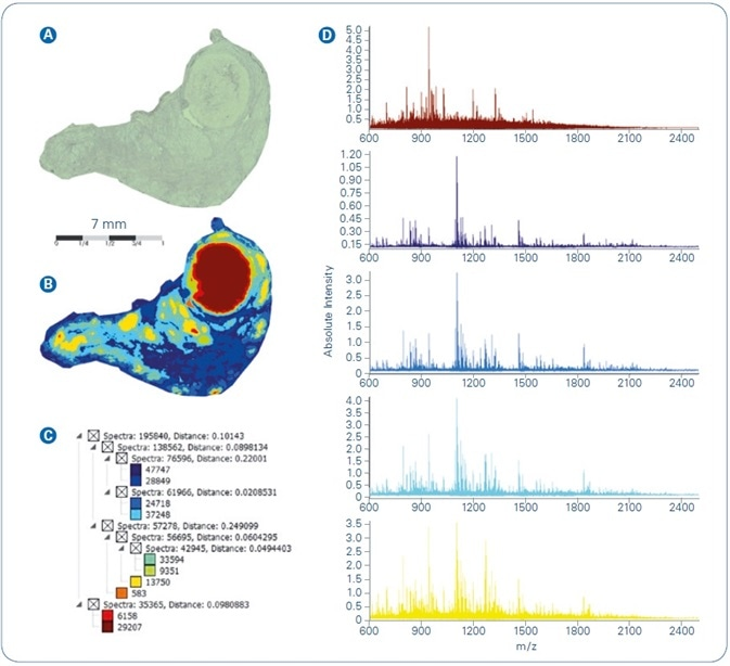Spatial segmentation analysis of MALDI-MSI dataset from FFPE human thyroid tissue: (A) Optical image; (B) Segmentation map; (C) Segmentation tree; (D) Mean spectra of main regions extracted from segmentation result.