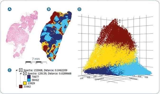 MALDI-MSI analysis of FFPE human breast cancer tissue: (A) Co-registered H&E image of tissue section stained post-MALDI; (B) Spatial segmentation map; (C) Corresponding segmentation tree; (D) PLSA Scores plot from the four main segmentation regions.