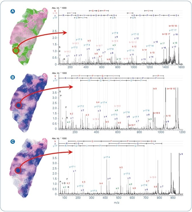 Selected MALDI ion images from FFPE human breast cancer tissue overlayed with co-registered H&E. Peptide identification was achieved by MALDI-MS/MS directly from tissue. (A) m/z 1562.8, GETGPSGPVGPAGAVGPR from Collagen alpha 2; (B) m/z 1198.7, AVFPSIVGRPR from Actin, cytoplasmic 1; (C) m/z 944.5, AGLQFPVGR from Histone H2AV.