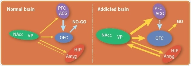 A comparison of the brain circuits in a normal brain with the brain circuits in an addicted brain