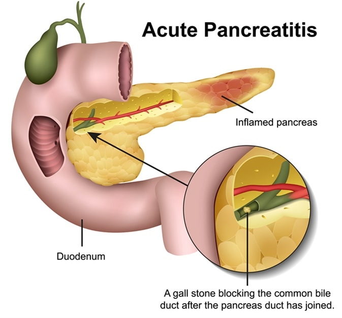 Acute pancreatitis 3d illustration. Image Credit: medicalstocks / Shutterstock