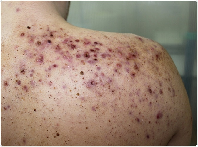 A case of severe form of acne vulgaris (acne conglobata) in a young male. Image Credit: Dermatology11 / Shutterstock
