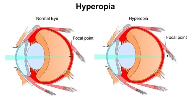 Hyperopia. Image Credit: Slave SPB / Shutterstock