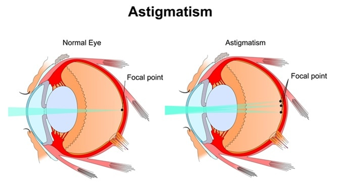 Astigmatism. Image Credit: Slave SPB / Shutterstock
