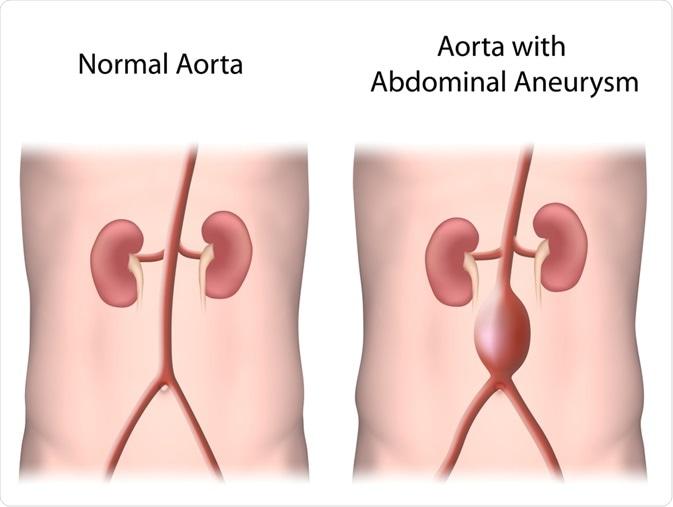 Aorta abdominal normal contra o AAA