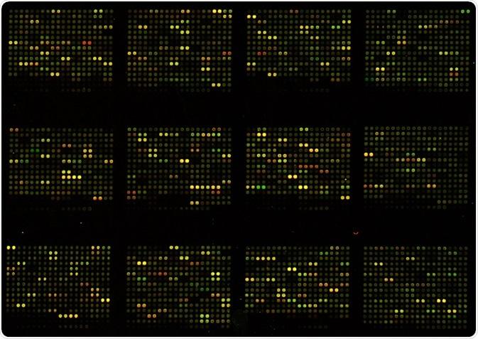 Los Microarrays han ofrecido las ventajas sin precedentes para los investigadores durante muchos años, pero ahora están siendo reemplazados por los nanoarrays,