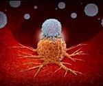 Patients on immunotherapies should consume more fiber, fewer probiotics