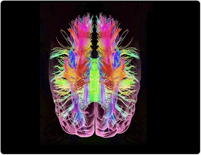 CLARITY is a popular method of removing lipids from brain tissue in order to see other structures such as neurons