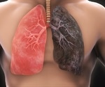 Non-smokers who develop lung cancer are hugely disadvantaged, says PHE