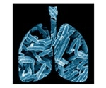 Novel models and strategies for TB detection, elimination, and care