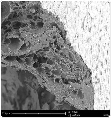 This is what a tooth filling interface looks like with an electron microscope