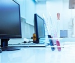 Making Laboratories More Efficient with the Most Modern LIMS on the Market