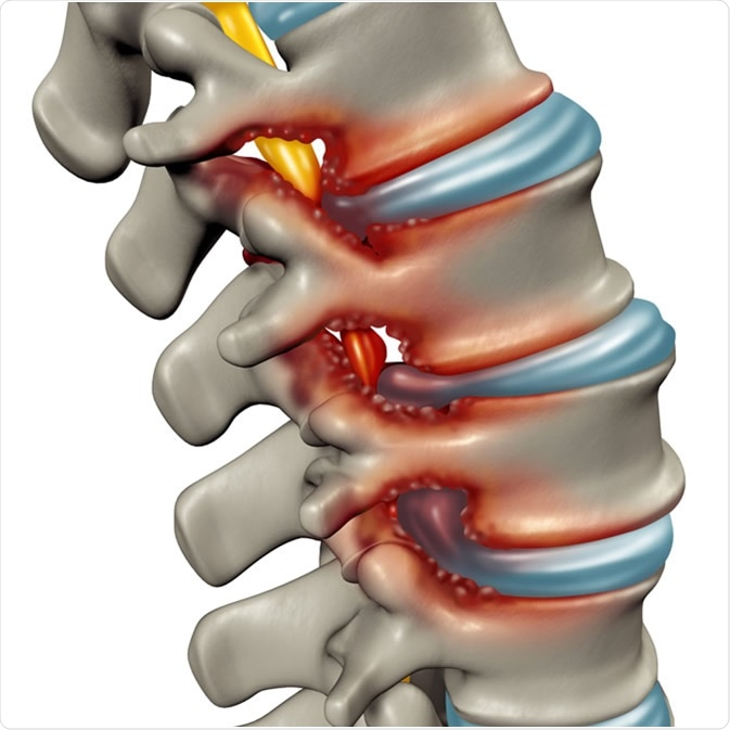 Spinal Stenosis as a degenerative illness in the human vertebrae causing compressed spine nerves medical concept as a 3D illustration. Credit: Lightspring / Shutterstock