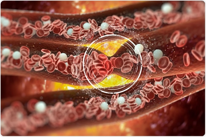 Illustration de caillots sanguins. Crédit : Vitstudio/Shutterstock