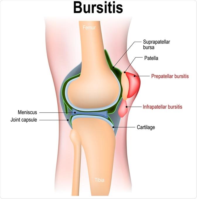 Bursitis - inflammation of bursae (synovial fluid). Prepatellar bursitis (housemaid