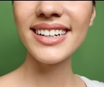 Over-the-counter teeth whitening strips damage teeth and gums, warn experts