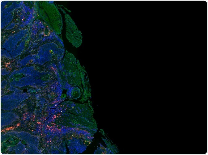 Immunofluorescence can be used to detect proteins of interest