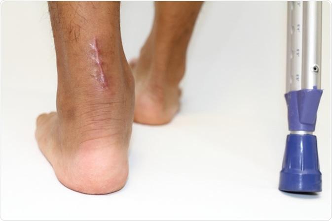 Operation scar for Achilles tendon. Image Credit: ziggy_mars  / Shutterstock
