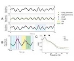 Novel measures of PD-related brain activity detected with scalp electroencephalography