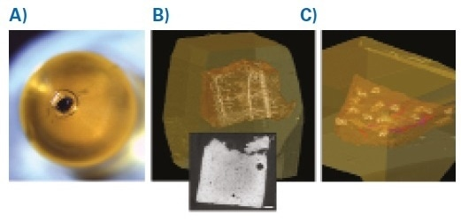 Mouse Brain and Skin. A: Resin block with embedded mouse brain tissue harboring the ROI. Note the tissue is fully opaque due to the 3DEM processing protocols. B: Reconstructed and rendered microCT volume of the sample.